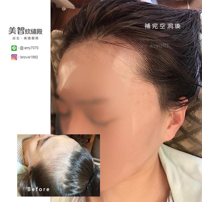 紋髮際線後,髮量看起來更豐厚更年輕