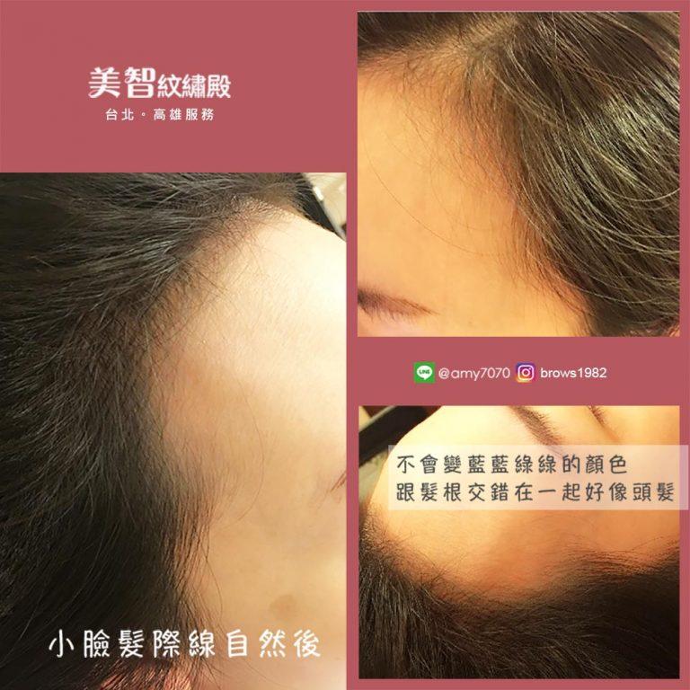 透過紋髮際線,髮絲看起來宛如天生