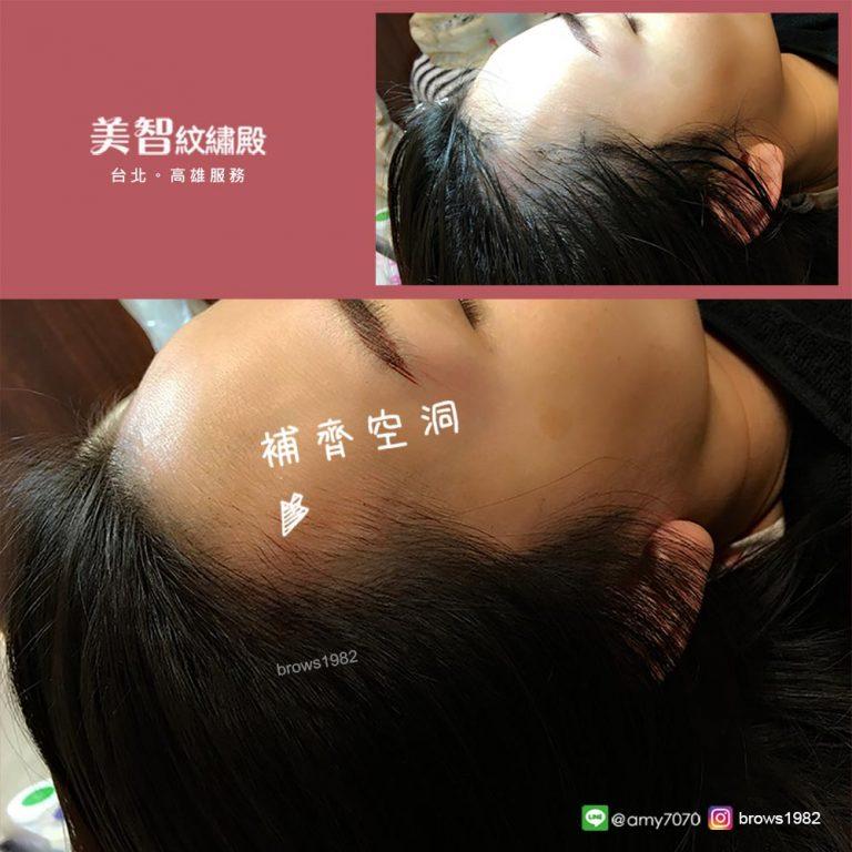 透過專業紋髮際線,解決空洞的問題