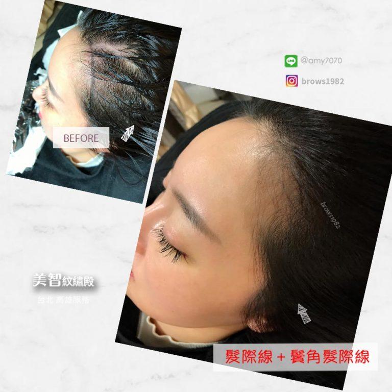 除了可補髮際線空洞,也能做鬢角髮際線