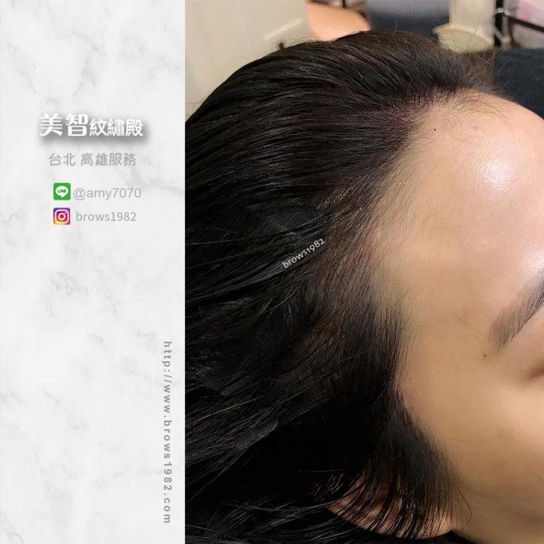 做完髮際線調整後,也不會有頭套感。