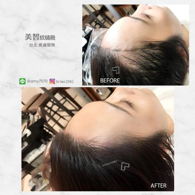 髮際線空洞交給美智幫你填補髮際線