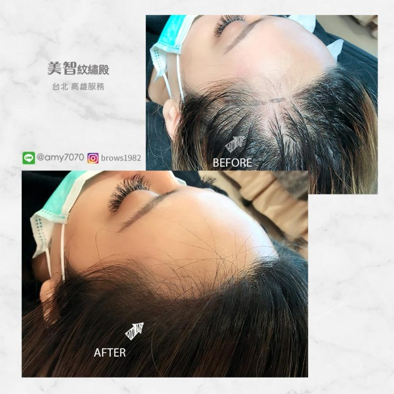 補完的髮際線看似圓潤,髮量也變得豐盈