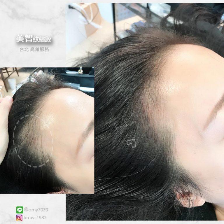 填補過的額角看起來變得圓潤