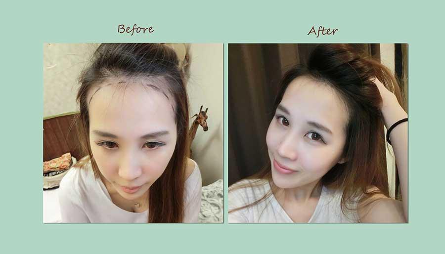 韓系鵝蛋臉髮際線設計-美智紋繡專科