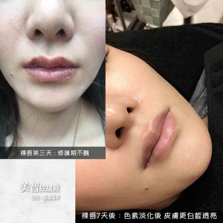 唇色暗沈變成粉嫩嘟嘟唇-台北紋唇推薦